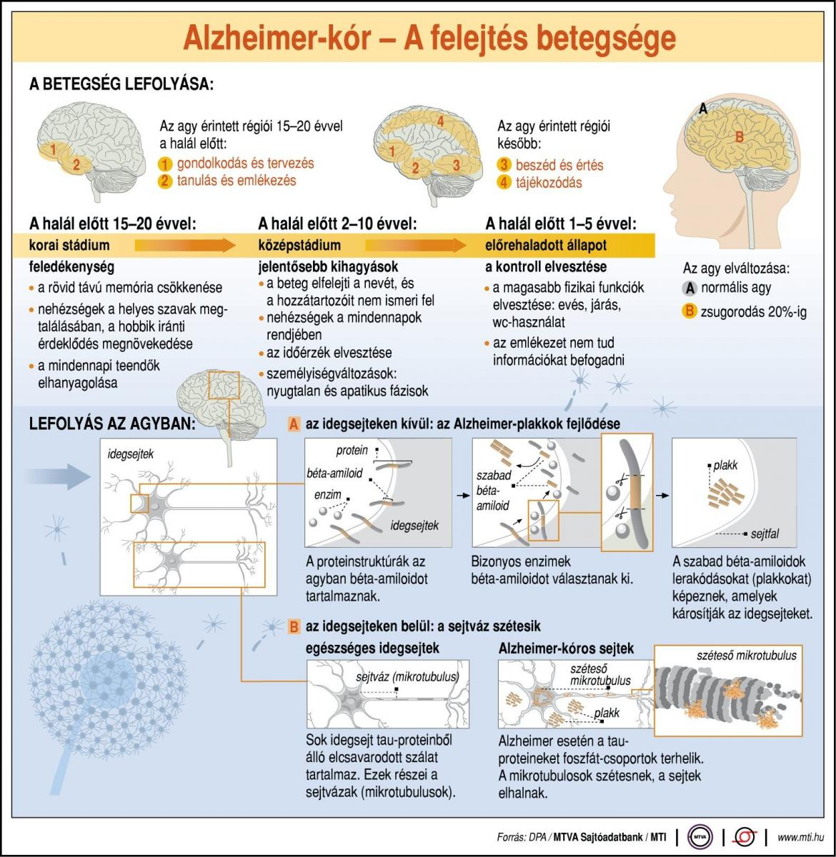 sclerosis multiplex látáskárosodás