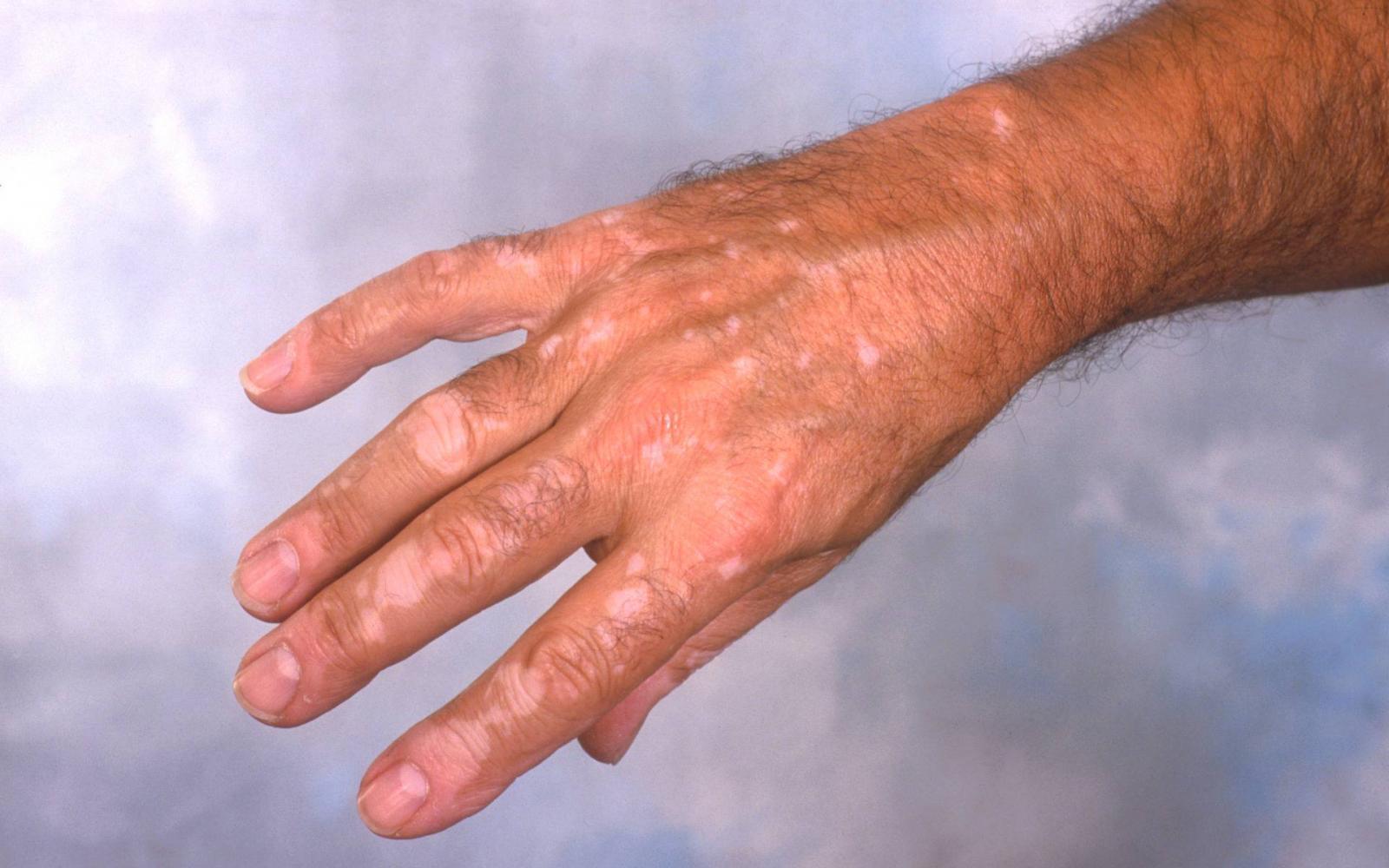 a kezén piros tömörített folt mi ez